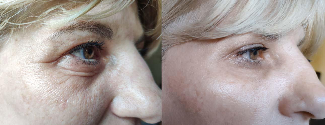 Agelessa Ultima Anti Aging Cream